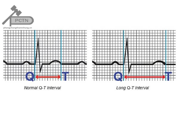 QT bình thường và QT kéo dài trên điện tâm đồ