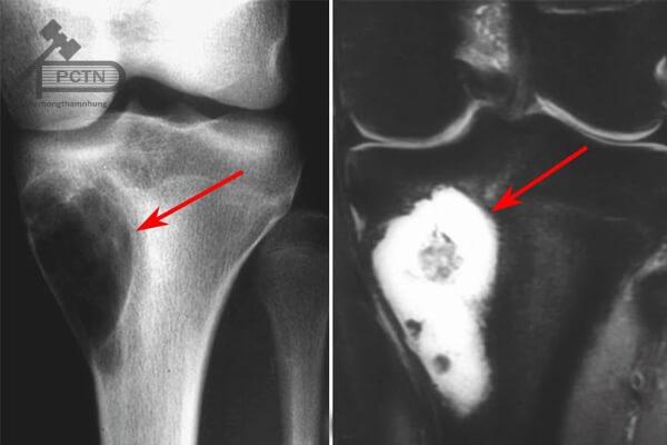 X quang Sarcoma xương