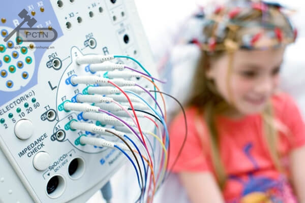 điện não đồ
