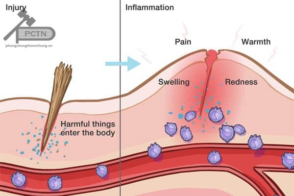 Sinh lý bệnh Viêm