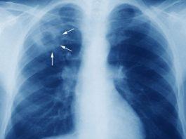 bệnh nhân bị lao phổi