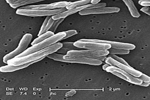 Trực khuẩn lao được chụp bằng kính hiển vi điện tử