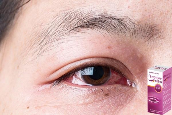 Bệnh nhân đau mắt nên sử dụng Novotane ultra