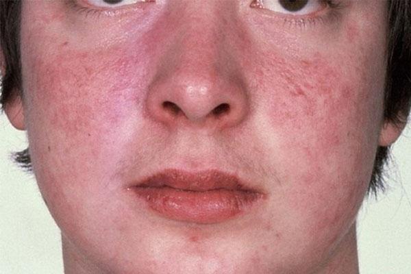 Betamethasone điều trị Lupus ban đỏ