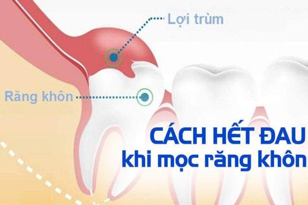 Cách làm hết đau khi mọc răng khôn