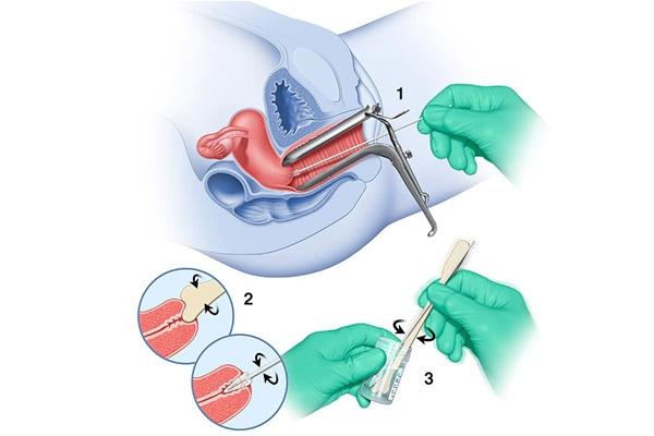 Phết tế bào cổ tử cung (PAP Smear)