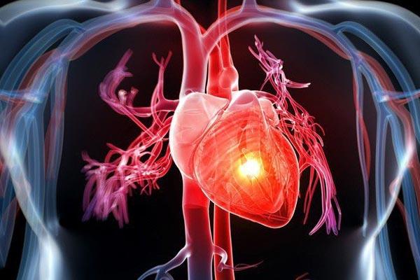 Thận trọng khi sử dụng Exforge đối với bệnh nhân suy tim sung huyết