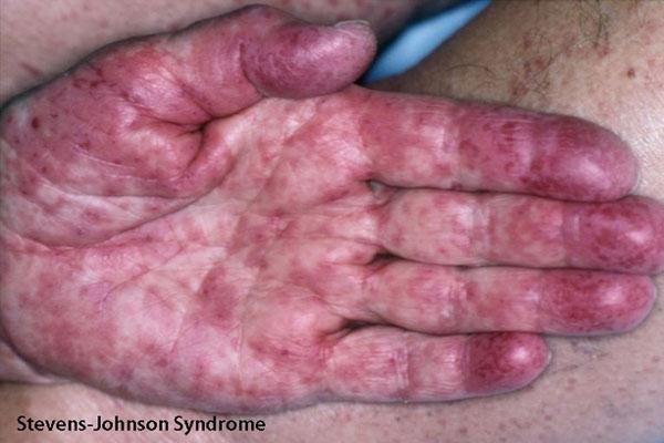 Hội chứng Stevens - Johnson