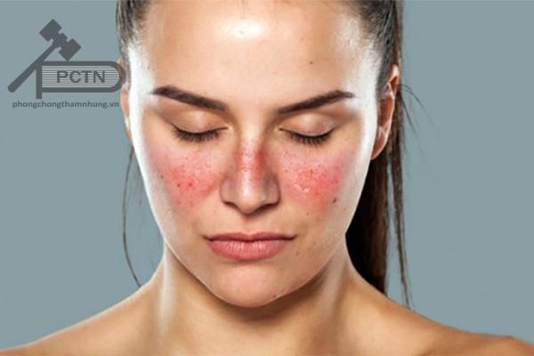 Cẩn thận khi dùng thuốc với bệnh nhân lupus ban đỏ hệ thống