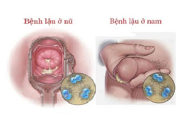 Triệu chứng lâm sàng bệnh lậu ở nam giới và nữ giới
