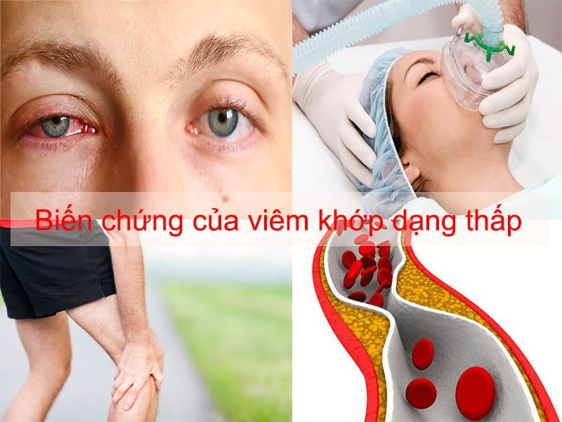 Biến chứng của bệnh viêm khớp dạng thấp