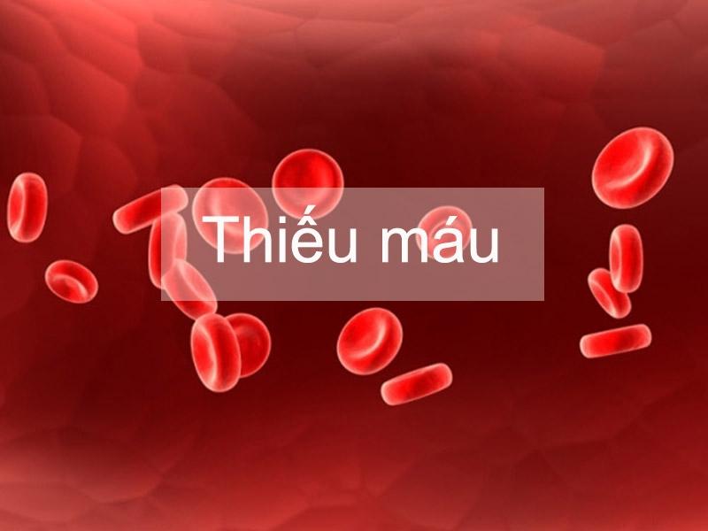 Thiếu máu ở người bị viêm khớp dạng thấp