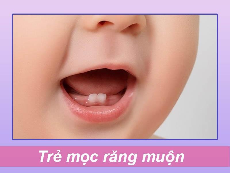 Trẻ mọc răng muộn